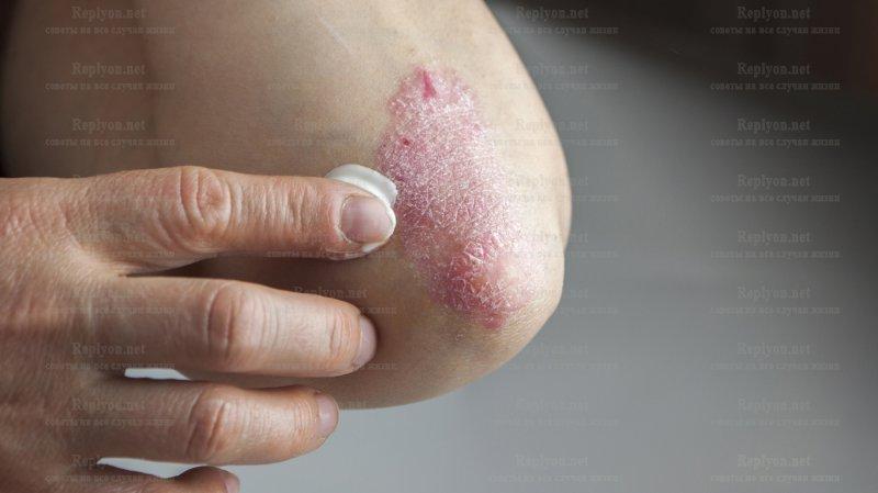 Лечение псориаз